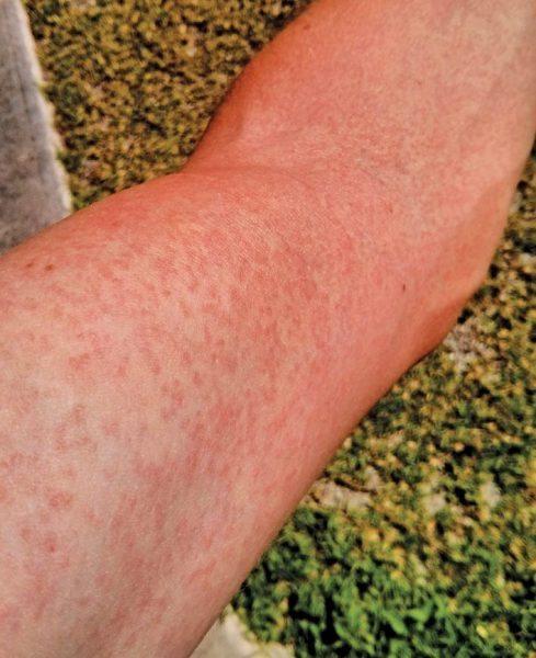 Zika virus mosquitoes : Typical rash caused by Zika Virus