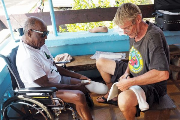 Glyfi fitting a prosthetic limb to Anthony Francis